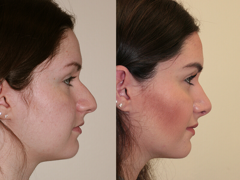 Rhinoplastie montr al op ration nez prix ic de for Interieur du nez